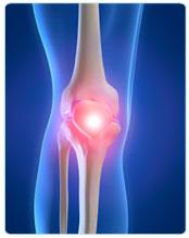 Остеоартроз: новый подход к наболевшей проблеме заболевания суставов