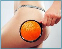 Вебинар Ad Medicine: «Козни варикоза, груз лимфостаза и «апельсиновая корка»