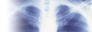 Заболевания опорно-двигательного аппарата